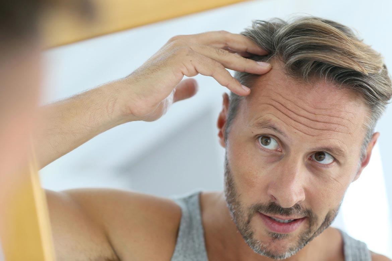 caduta-dei-capelli-stagionale