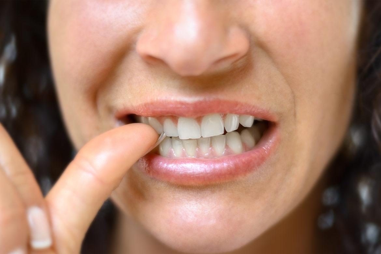 smettere-mangiare-unghie