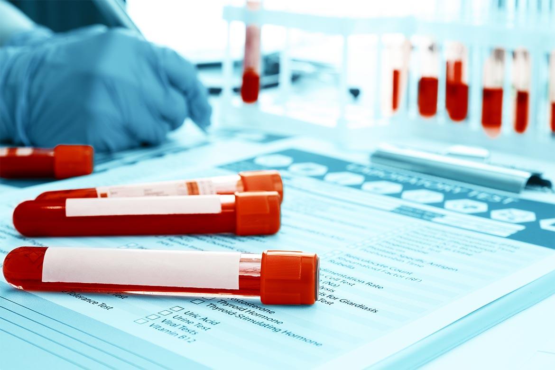 colesterolo-nelle-analisi