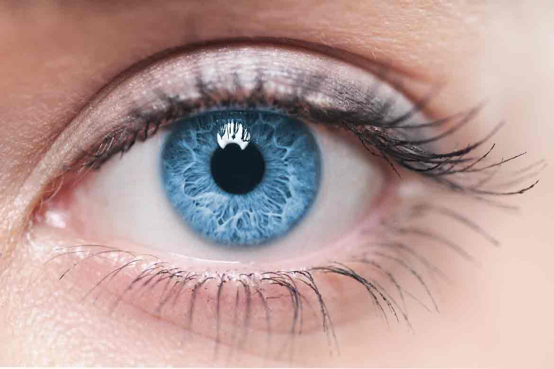 pupille-dilatate