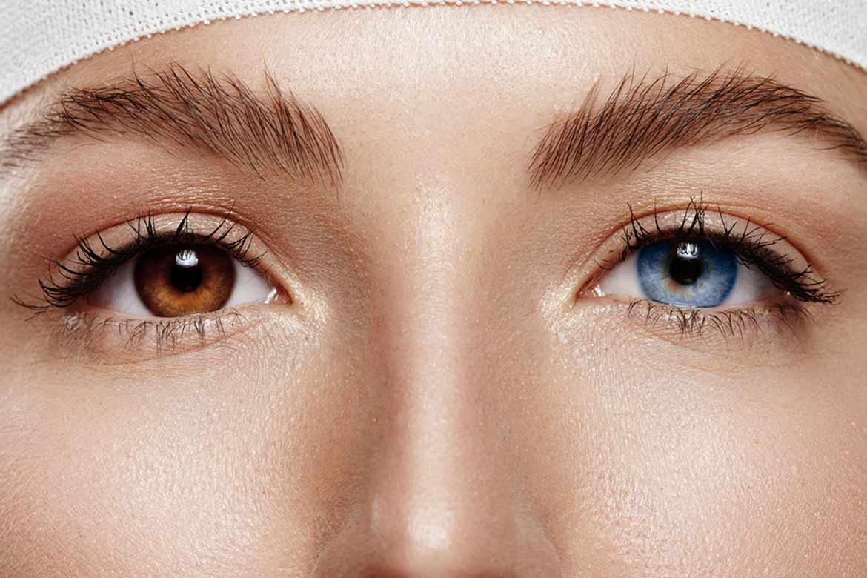 eterocromia-occhi