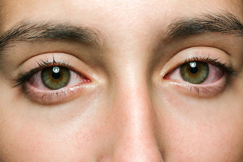 vene-rosse-occhi