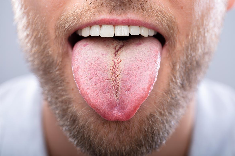 leucoplachia-lingua
