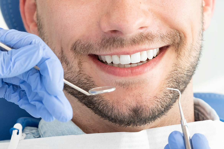 devitalizzare-un-dente