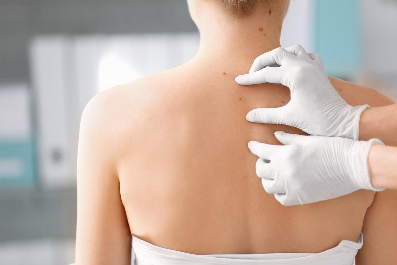 immunoterapia-oncologica-effetti-collaterali