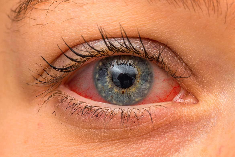 occhi-rossi-collirio